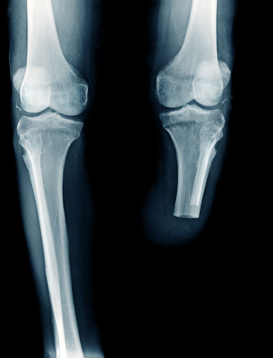 x-ray showing an amputated leg of a person who requires assistance of a Los Angeles amputation injury lawyer