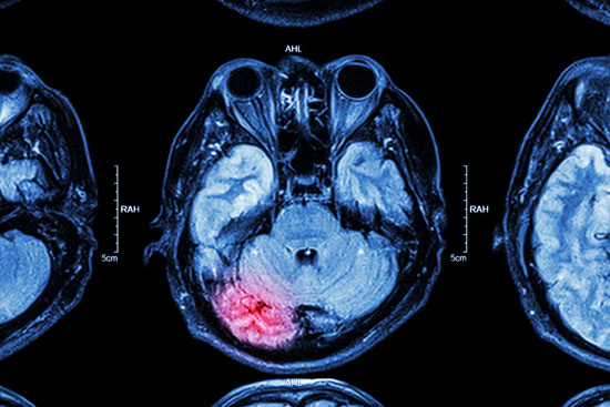 Los Angeles brain injury attorney will fight for this person whose MRI imaging shows a significant brain trauma
