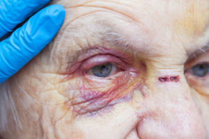 nursing home physical abuse lawyer is ready to help this patient with a hematoma under her eye after being abused